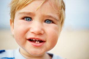Zähneknirschen bei Kindern