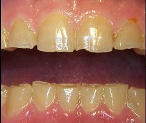 Zähneknirschen Symptome Abrasionsgebiss